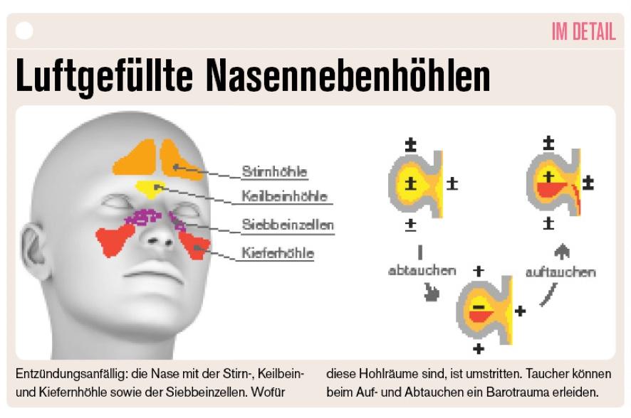 Nasennebenhöhlen in der Schema-Darstellung.
